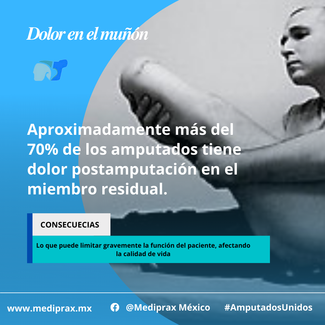 Aproximadamente-más-del-70%-de-los-amputados-tiene-dolor-postamputación-en-el-miembro-residual
