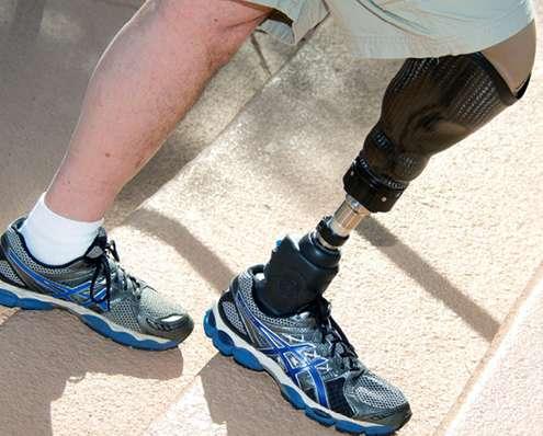 Amputaciones: Técnicas de amputación y equipamiento protésico