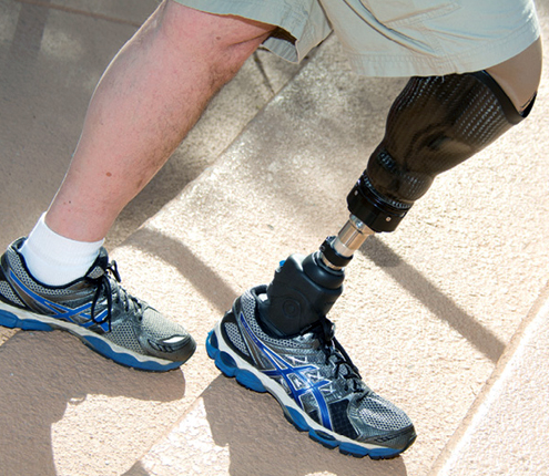 Amputación-equipo-prótesis