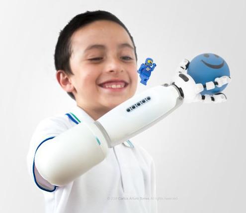 Niño-con-prótesis-Mediprax