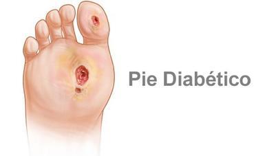pie-diabético