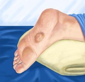 enfermedad-ledderhose