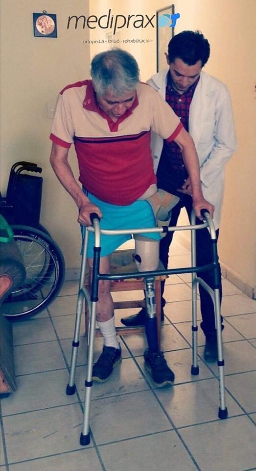 protesis-arriba-de-rodilla-para-amputacion-de-miembro-inferior