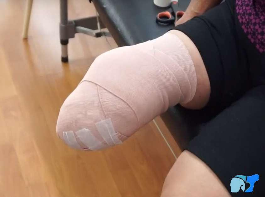 Técnica del vendaje correcto para paciente con amputación debajo de rodilla
