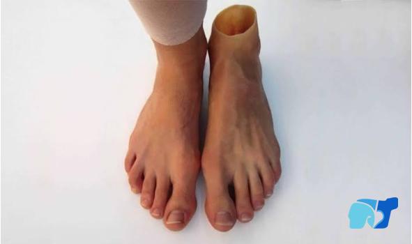 pies-diabetes-protesis