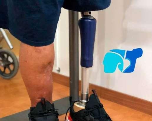 Limitaciones de una prótesis de pierna con componentes básicos.