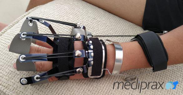 férula-nervio-radial-mediprax