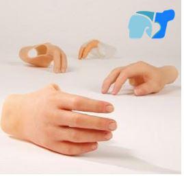 prótesis-mano--mediprax