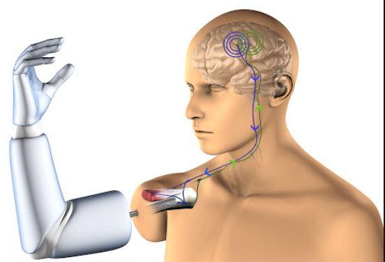 prótesis-mioelectrica-mediprax