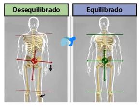 desequilibrio-óseo-por-dismetría