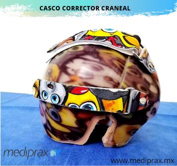 casco corrector cráneal