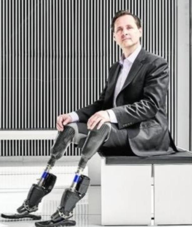 Prótesis-bionica-para-amputación-debajo-de-la-rodilla