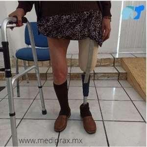 prótesis-para-amputación-arriba-de-rodilla-con-sistema-de-suspensión-de-strap