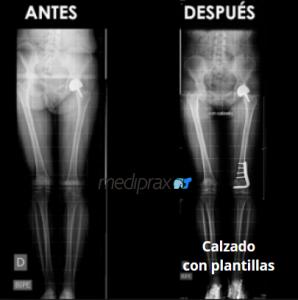 radiografia-de-compración-de-la-longitud-de-las piernas