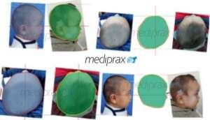 seguimiento-del-tratamiento-con-casco-craneal- a los-dos-meses-de-usoJPG