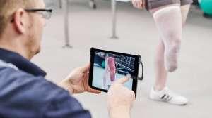 toma-de-impresión-3d-para-protesis