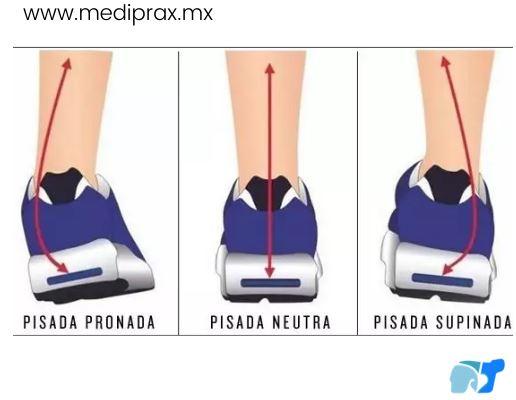 zapatos-para-distintos-tipos-de-pisadas