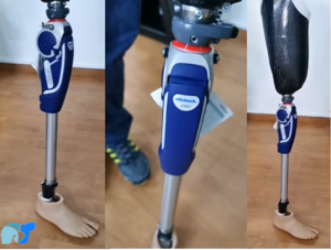 Prótesis-con-socket-de-fibra-de-carbón-y-bordes-flexibles