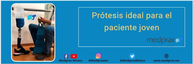 Prótesis-ideal-para-el-paciente-joven
