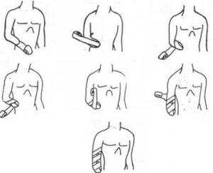 ejemplo-de-vendaje-para-amputación-debajo-de-codo