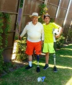 Pacientes-mediprax-con-prótesis-arriba-de-rodilla