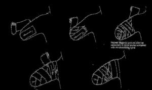 pasos-del-vendaje-de-compresión-en-miembro-superior