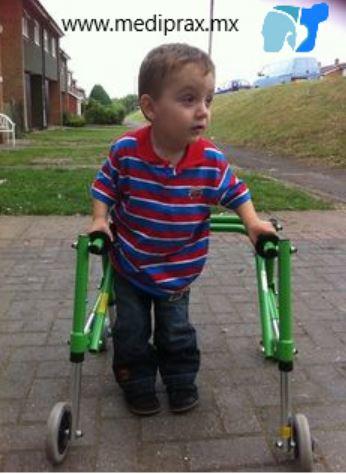 marcha-en-niños-con-paralisis-cerebral