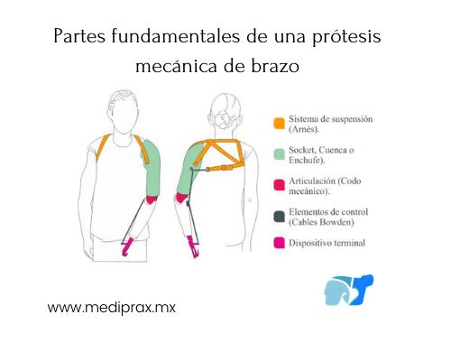 partes-fundamentales-de-una-prótesis-mecánica-de-brazo