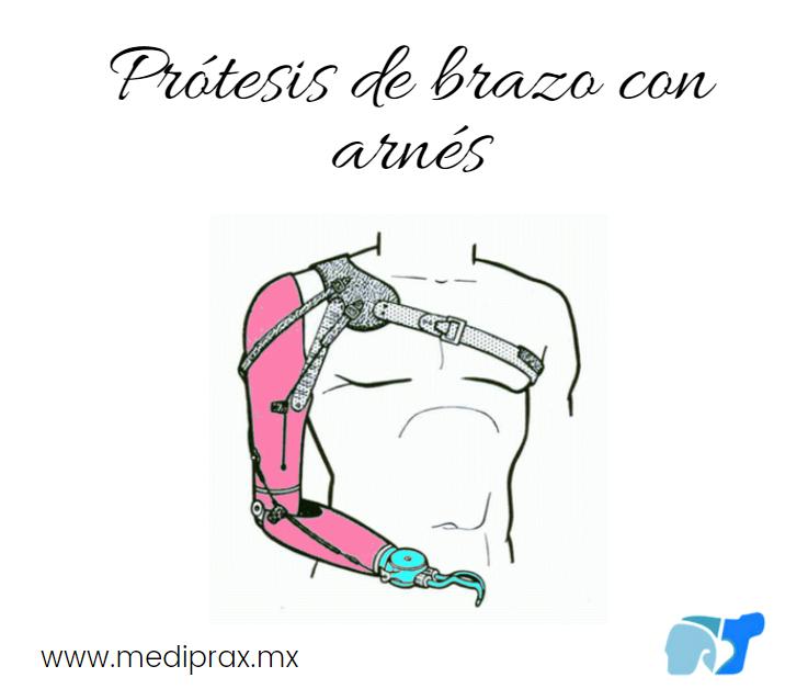 prótesis-de-brazo-con-arnes