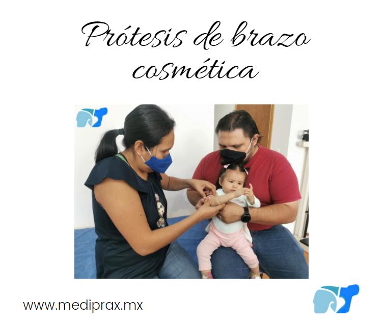 prótesis-de-brazo-cosmetica