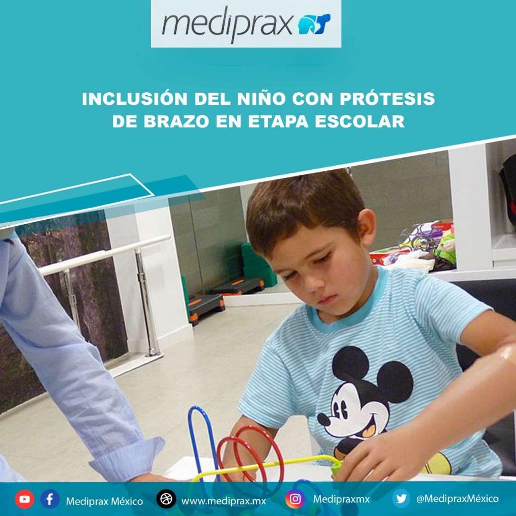 inclusion-del-niño-con-prótesis-de-brazo-en-etapa-escolar