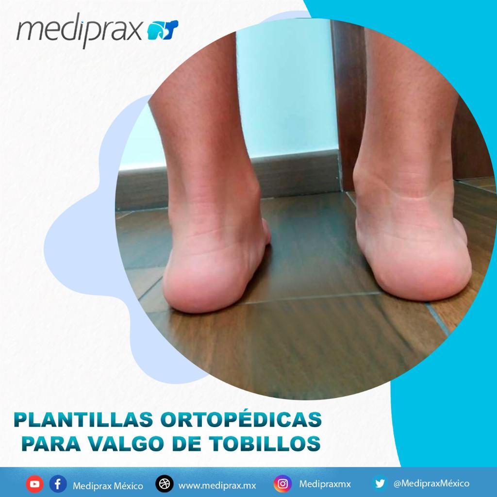 plantillas-ortopedicas-para-valgo-de-tobillos
