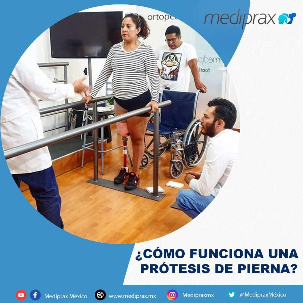como-funciona-una-protesis-de-pierna