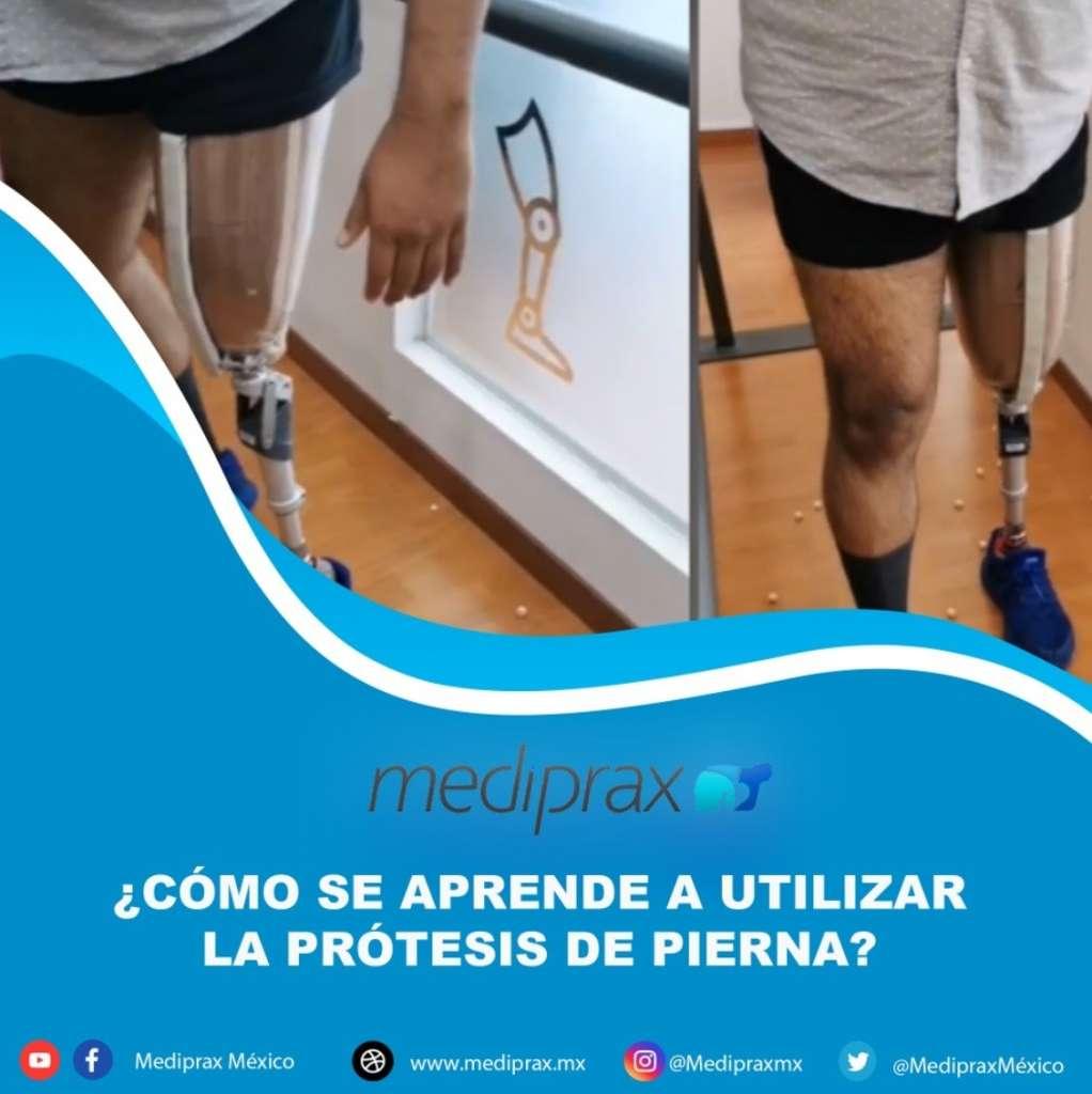 como-se-aprende-a-utilizar-la-prótesis-de-pierna