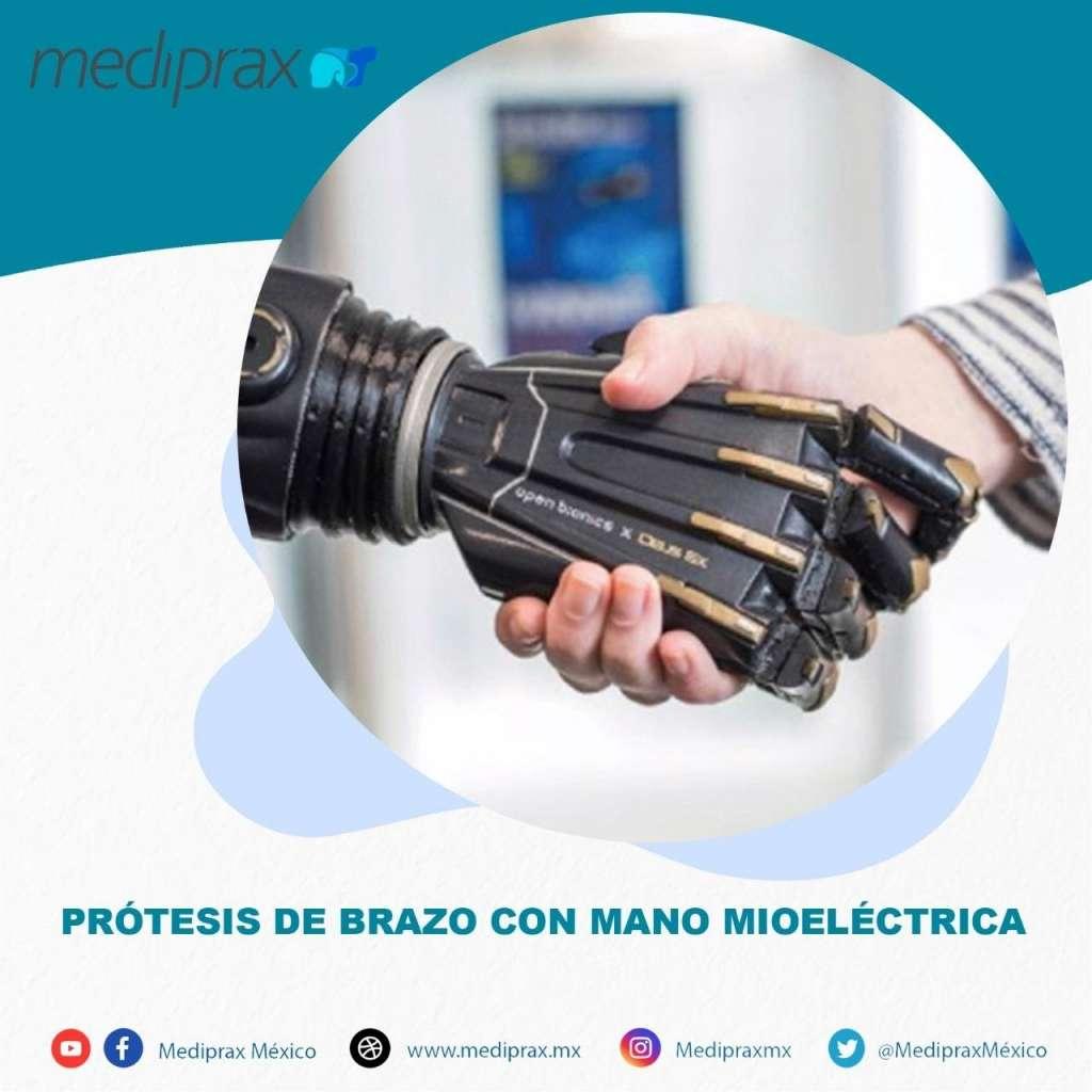 protesis-de-brazo-con-mano-mioelectrica