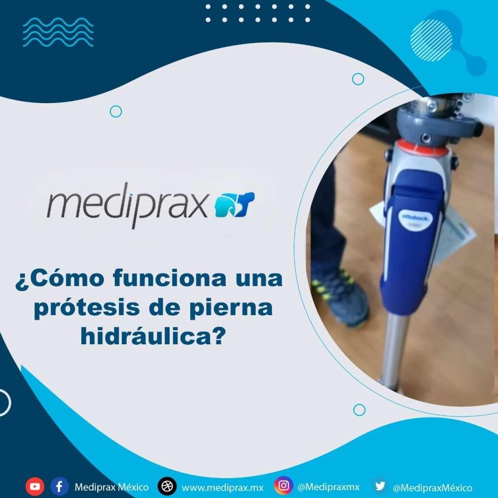 Como-funciona-una-prótesis-de-pierna-hidraulica