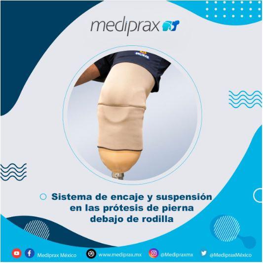 sistema-de-encajes-en-prótesis