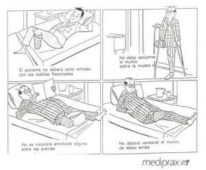 cuidados-posturales-en-el-amputado-debajo-de-rodilla