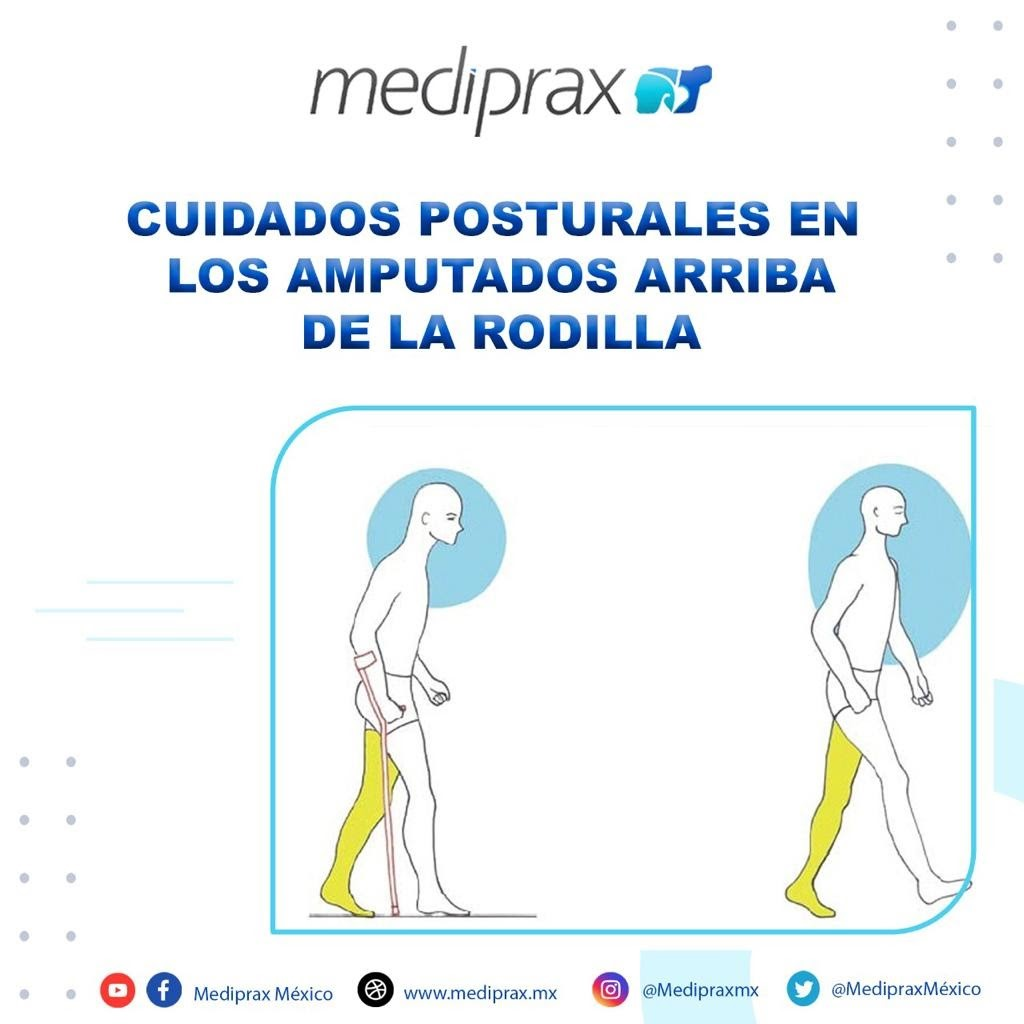 cuidados-posturales-en-los-amputados-arriba-de-la-rodilla
