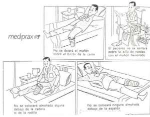 cuidados-posturales-para-la-amputacion-transtibial