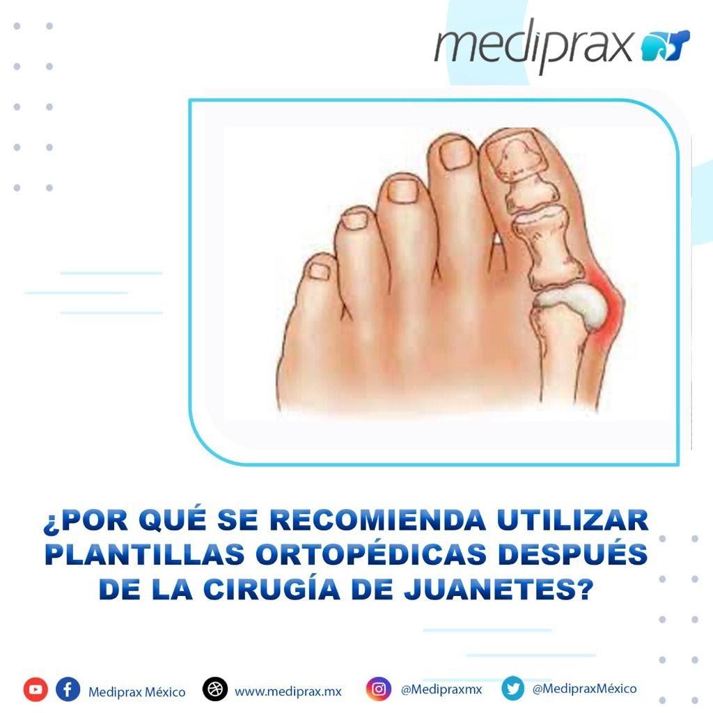 por-que-se-recomienda-utilizar-plantillas-ortopédicas-después-de-la-cirugía-de-juanetes