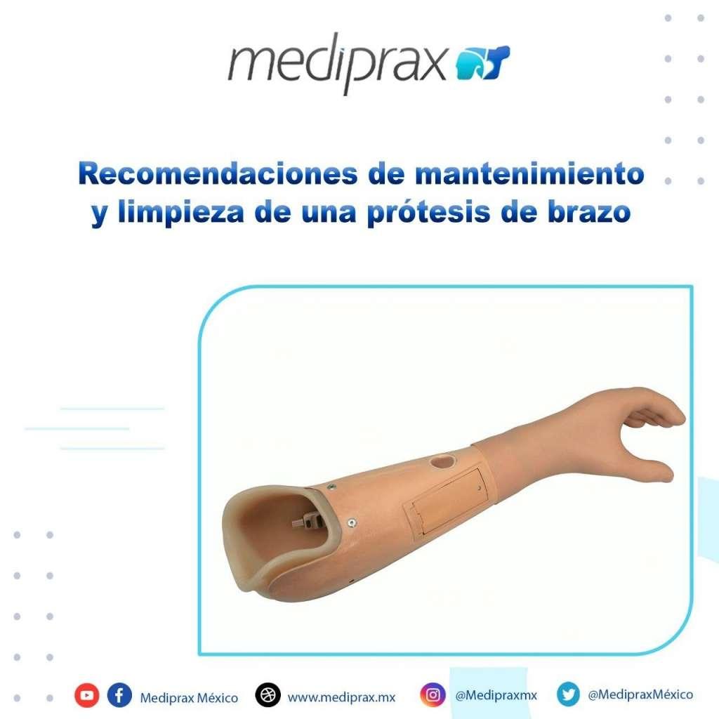 recomendaciones-de-mantenimiento-y-limpieza-de-una-prótesis-de-brazo