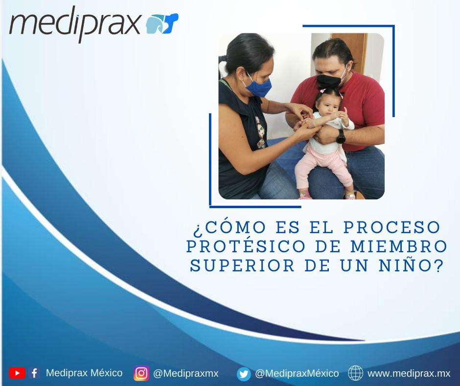 ¿como-es-el-proceso-protesico-de-miembro-superior-de-un-niño?