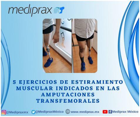 5 ejercicios de estiramiento muscular indicados en las amputaciones transfemorales