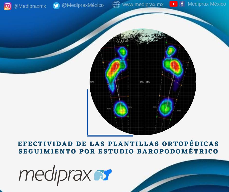efectividad-de-las-plantillas-ortopédicas-con-base-en-estudio-baropodometrico