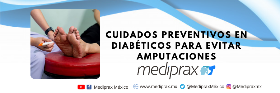 cuidados-preventivos-en-diabéticos-para-prevenir-amputacione