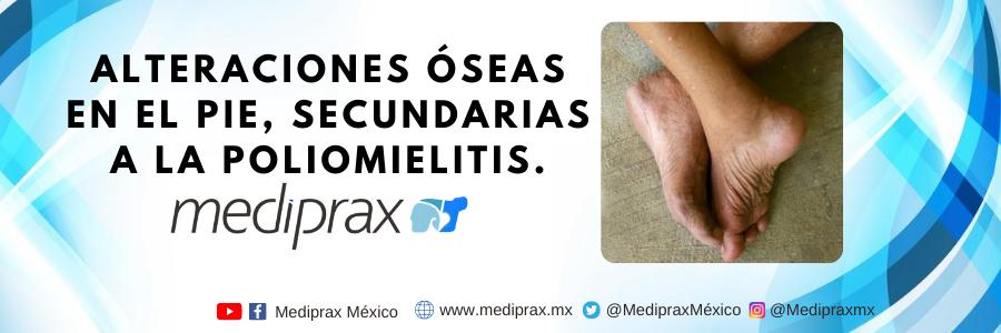 Alteraciones-oseas-en-el-pie-secundarias-a-la-poliomielitis