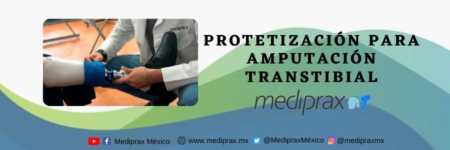 Proceso-de-protetizacion-transtibial
