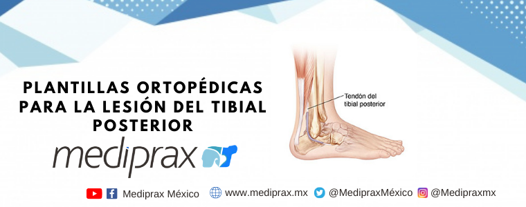 Plantillas ortopédicas para la lesión del tibial posterior