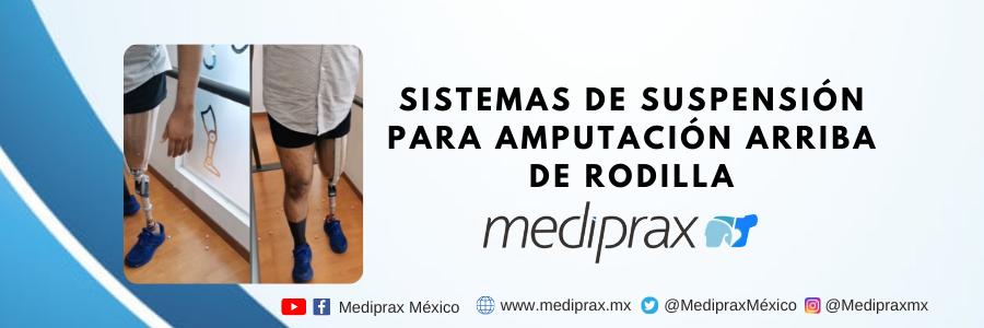 Sistemas de suspensión en prótesis arriba de rodilla